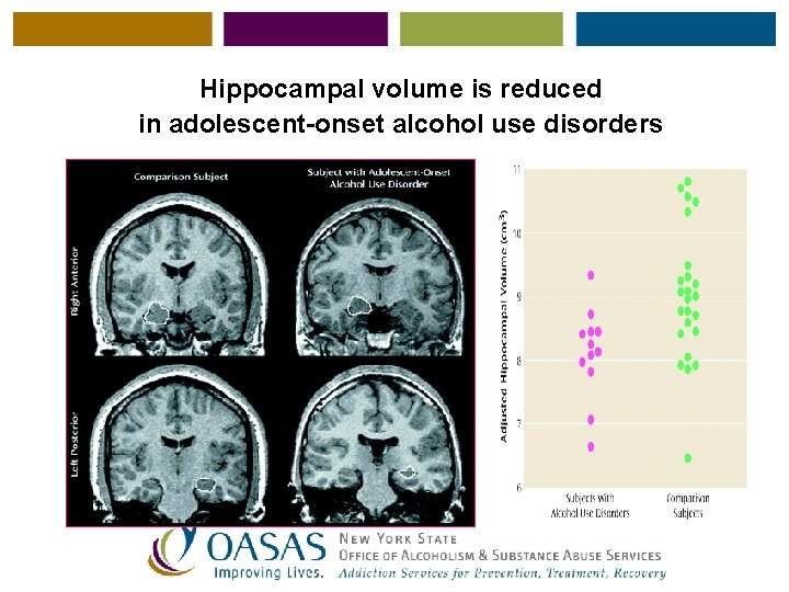 Hippocampal volume is reduced in adolescent-onset alcohol use disorders
