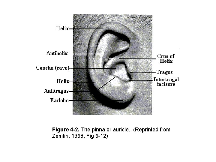 Figure 4 -2. The pinna or auricle. (Reprinted from Zemlin, 1968, Fig 6 -12)
