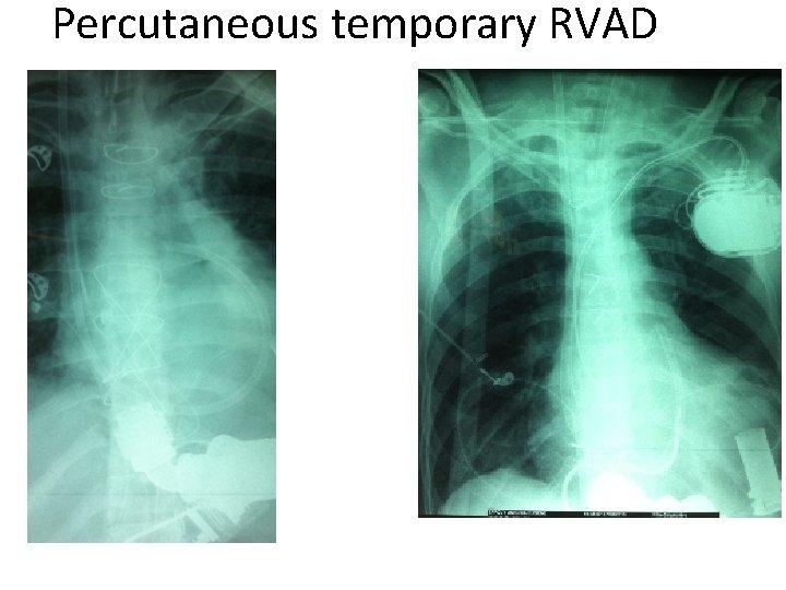Percutaneous temporary RVAD