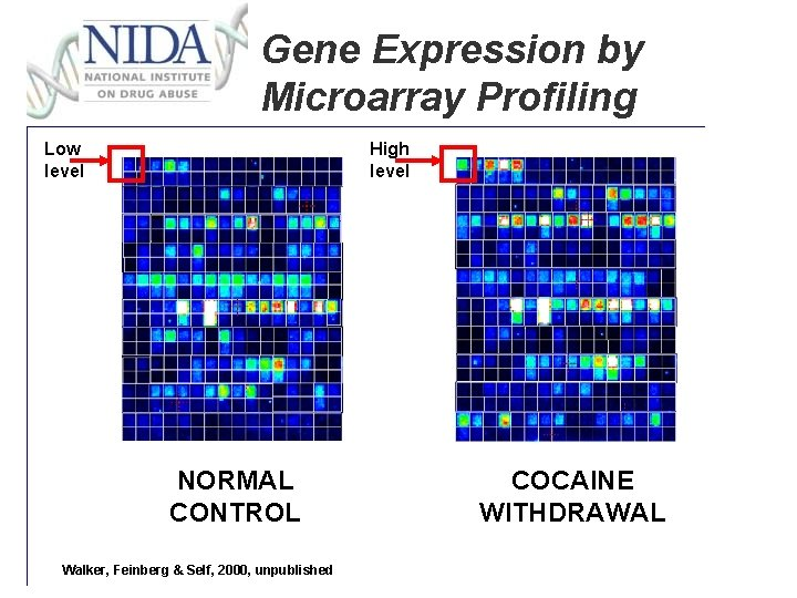 Gene Expression by Microarray Profiling Low level High level NORMAL CONTROL Walker, Feinberg &
