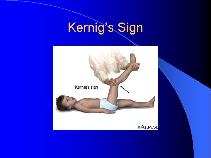 Kernig's Sign