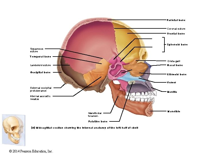 Parietal bone Coronal suture Frontal bone Sphenoid bone Squamous suture Temporal bone Crista galli