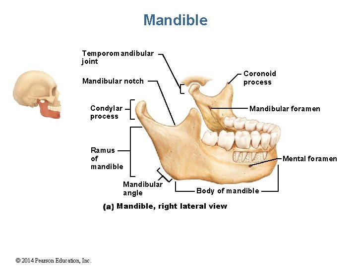 Mandible Temporomandibular joint Coronoid process Mandibular notch Condylar process Mandibular foramen Ramus of mandible