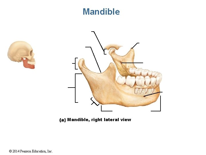 Mandible, right lateral view © 2014 Pearson Education, Inc.
