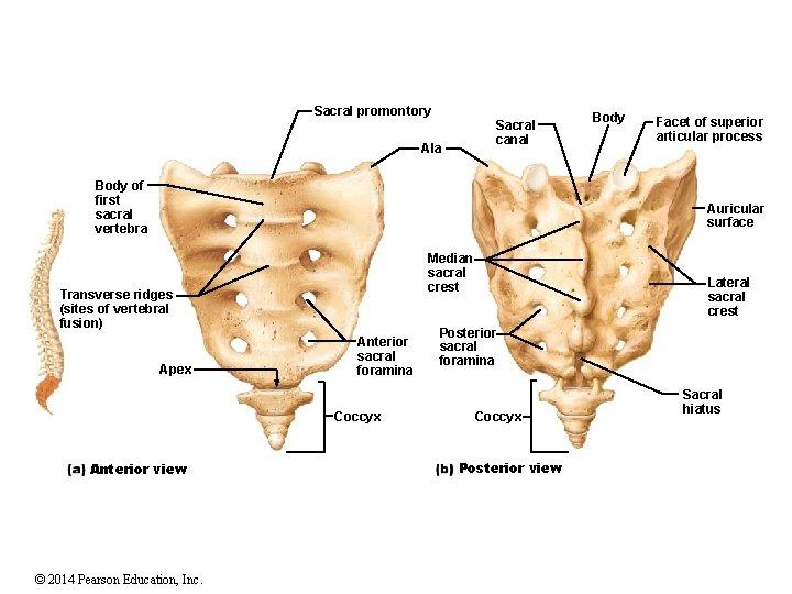 Sacral promontory Sacral canal Ala Body of first sacral vertebra Body Facet of superior