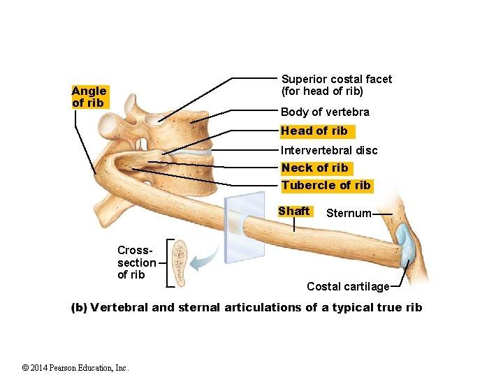 Superior costal facet (for head of rib) Angle of rib Body of vertebra Head