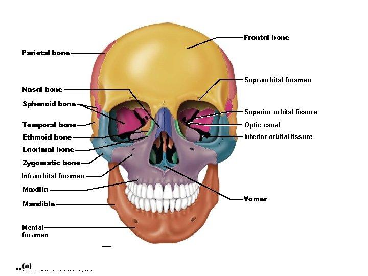 Frontal bone Parietal bone Supraorbital foramen Nasal bone Sphenoid bone Superior orbital fissure Temporal
