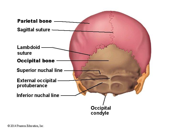 Parietal bone Sagittal suture Lambdoid suture Occipital bone Superior nuchal line External occipital protuberance