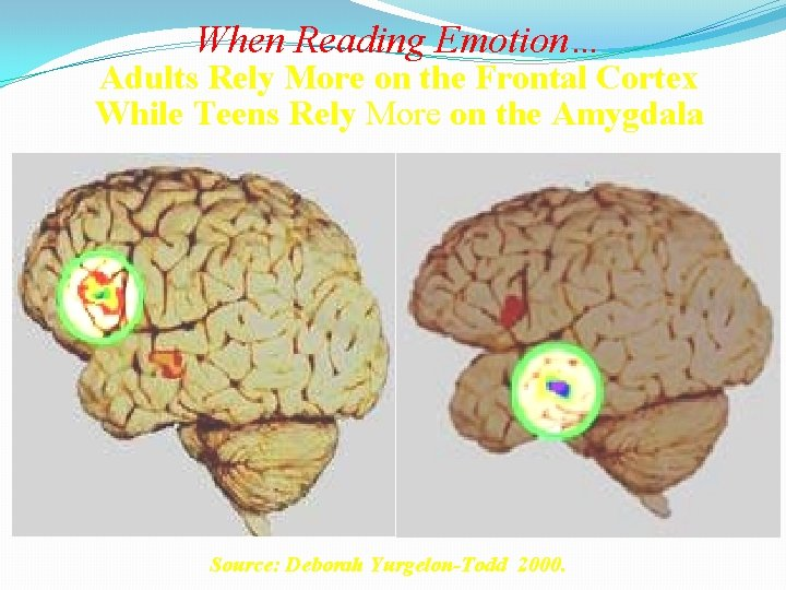 When Reading Emotion… Adults Rely More on the Frontal Cortex While Teens Rely More