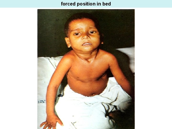 forced position in bed