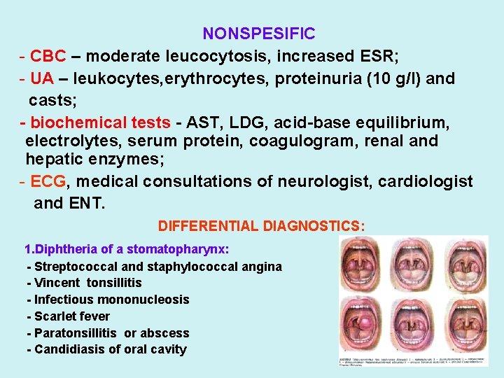 NONSPESIFIC - CBC – moderate leucocytosis, increased ESR; - UA – leukocytes, erythrocytes, proteinuria