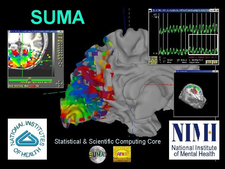 SUMA Statistical & Scientific Computing Core 1 29 Oct 2009 SSCC/NIMH