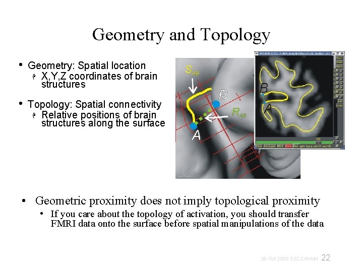 Geometry and Topology • Geometry: Spatial location X, Y, Z coordinates of brain structures