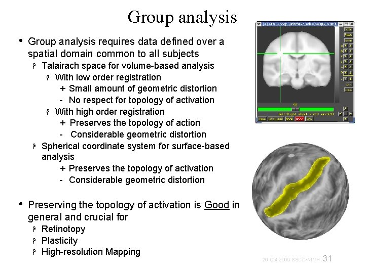 Group analysis • Group analysis requires data defined over a spatial domain common to