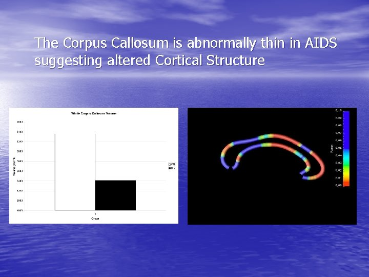 The Corpus Callosum is abnormally thin in AIDS suggesting altered Cortical Structure