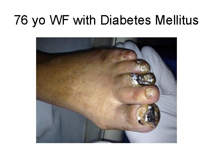 76 yo WF with Diabetes Mellitus
