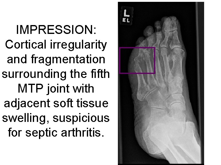 IMPRESSION: Cortical irregularity and fragmentation surrounding the fifth MTP joint with adjacent soft tissue