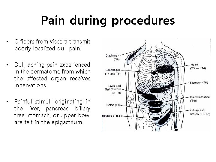 Pain during procedures • C fibers from viscera transmit poorly localized dull pain. •