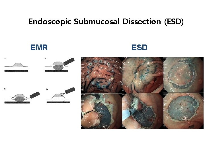Endoscopic Submucosal Dissection (ESD) EMR ESD