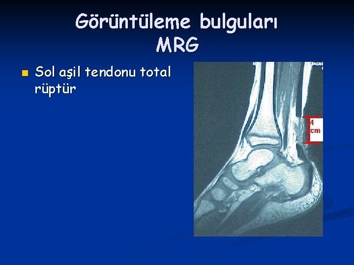 Görüntüleme bulguları MRG n Sol aşil tendonu total rüptür