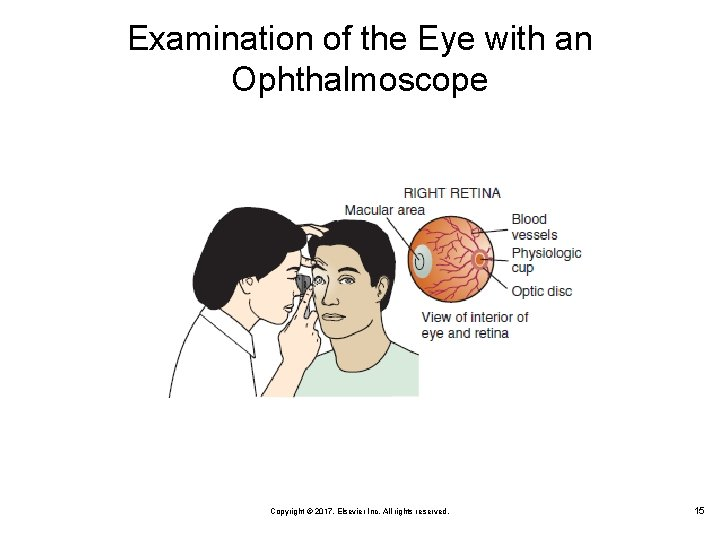 Examination of the Eye with an Ophthalmoscope Copyright © 2017, Elsevier Inc. All rights
