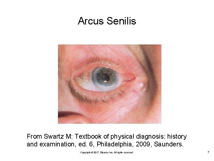 Arcus Senilis From Swartz M: Textbook of physical diagnosis: history and examination, ed. 6,
