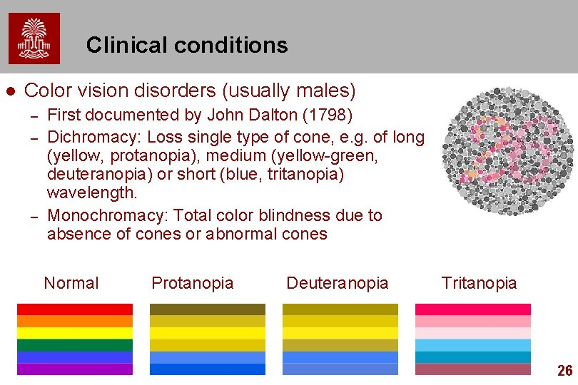 Clinical conditions l Color vision disorders (usually males) – – – First documented by