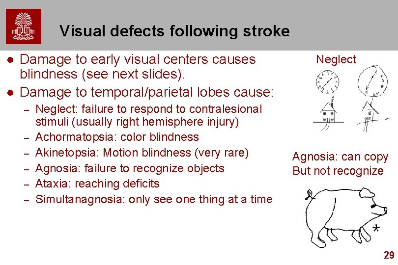 Visual defects following stroke l l Damage to early visual centers causes blindness (see