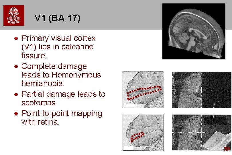 V 1 (BA 17) l l Primary visual cortex (V 1) lies in calcarine
