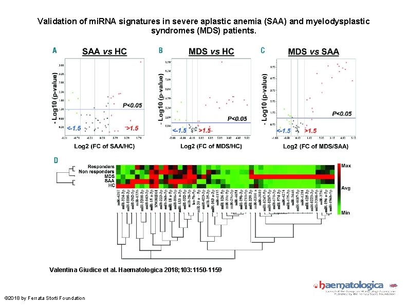 Validation of mi. RNA signatures in severe aplastic anemia (SAA) and myelodysplastic syndromes (MDS)