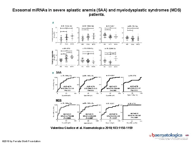 Exosomal mi. RNAs in severe aplastic anemia (SAA) and myelodysplastic syndromes (MDS) patients. Valentina