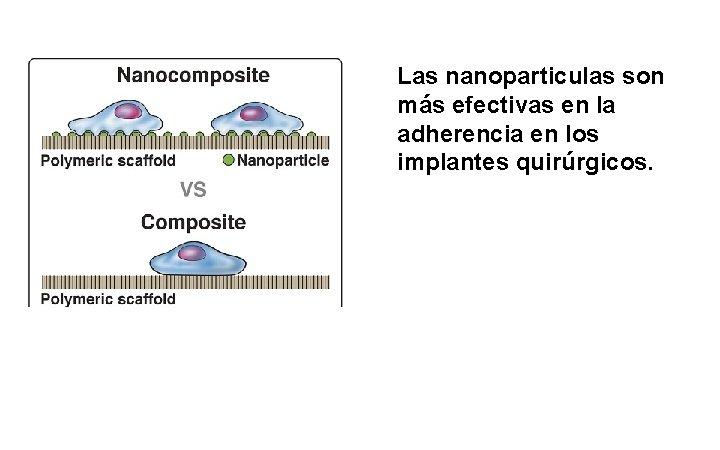 Las nanoparticulas son más efectivas en la adherencia en los implantes quirúrgicos.