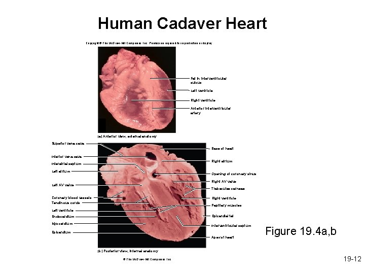 Human Cadaver Heart Copyright © The Mc. Graw-Hill Companies, Inc. Permission required for reproduction