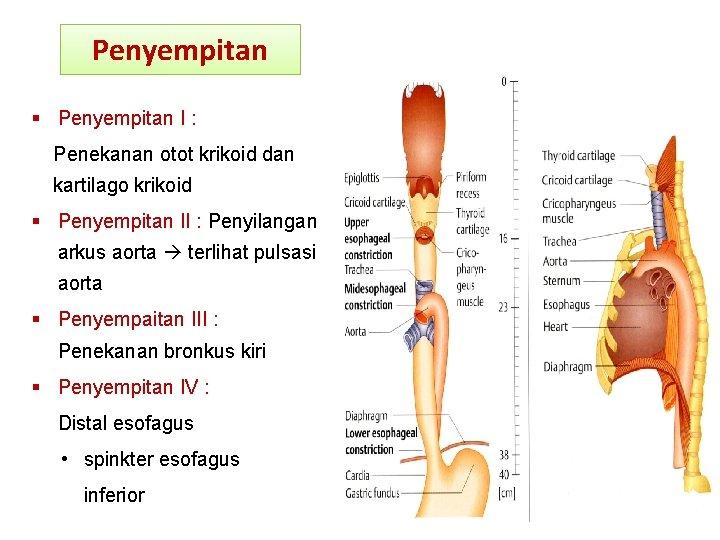 Penyempitan I : Penekanan otot krikoid dan kartilago krikoid Penyempitan II : Penyilangan arkus