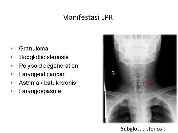 Manifestasi LPR • • • Granuloma Subglottic stenosis Polypoid degeneration Laryngeal cancer Asthma /