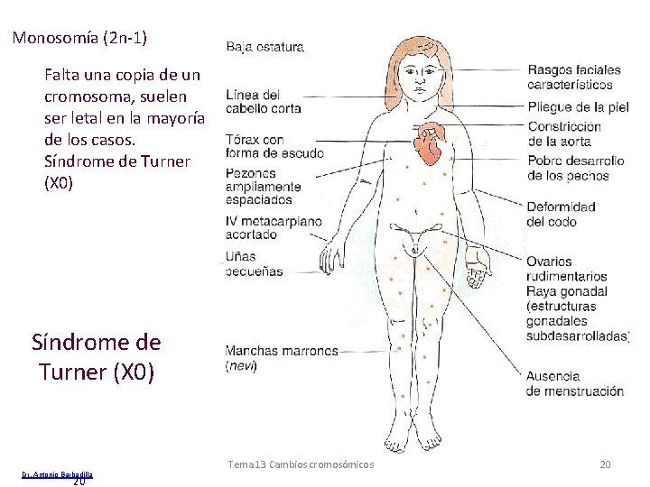 Monosomía (2 n-1) Falta una copia de un cromosoma, suelen ser letal en la