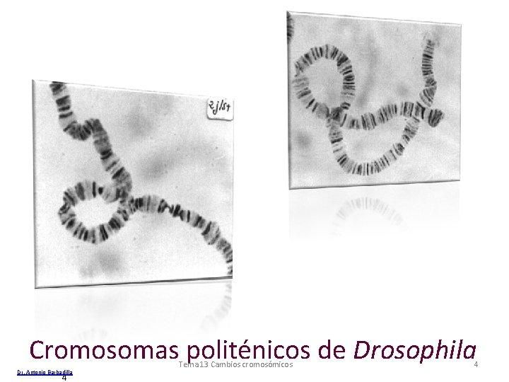 Cromosomas politénicos de Drosophila Dr. Antonio Barbadilla 4 Tema 13 Cambios cromosómicos 4