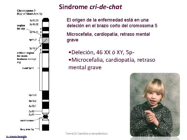 Sindrome cri-de-chat El origen de la enfermedad está en una deleción en el brazo