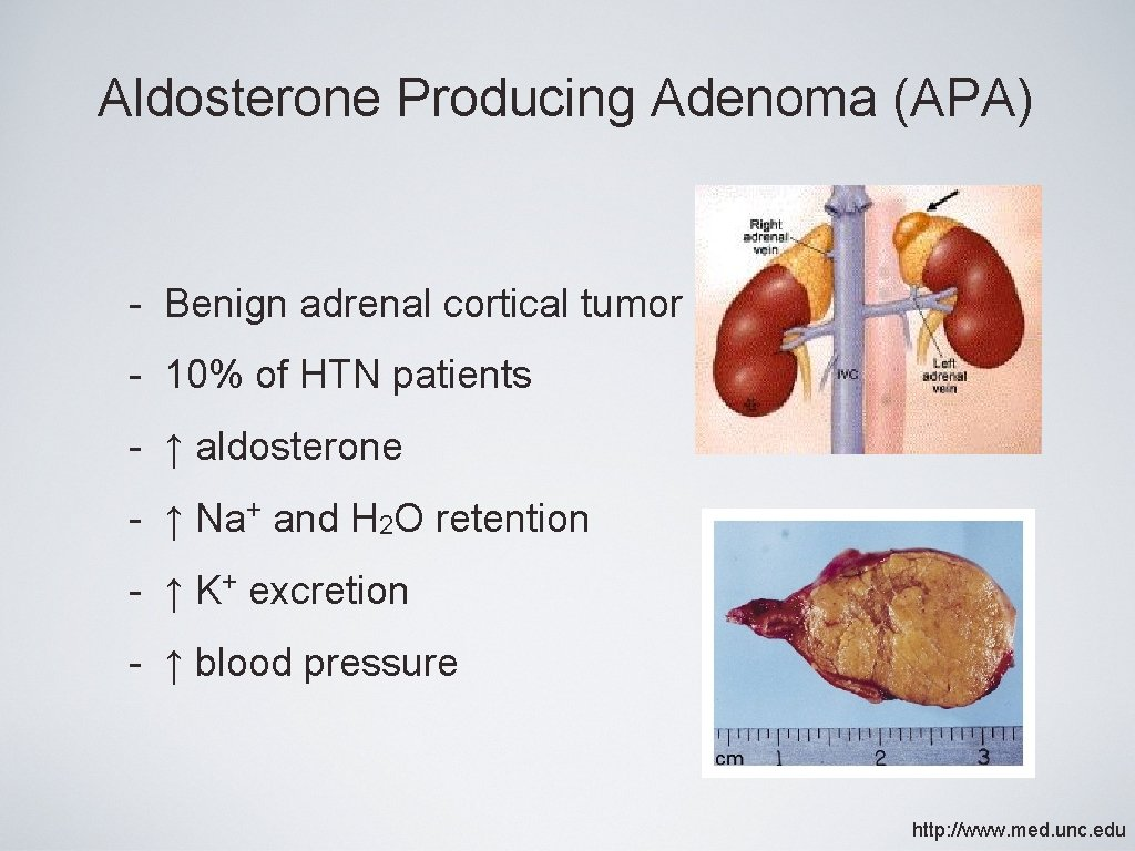 Aldosterone Producing Adenoma (APA) - Benign adrenal cortical tumor - 10% of HTN patients