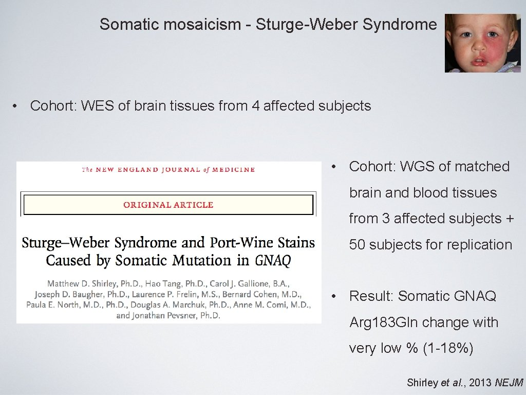 Somatic mosaicism - Sturge-Weber Syndrome • Cohort: WES of brain tissues from 4 affected