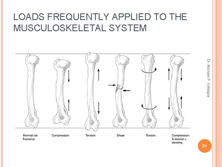 LOADS FREQUENTLY APPLIED TO THE MUSCULOSKELETAL SYSTEM Dr. Michael P. Gillespie 31