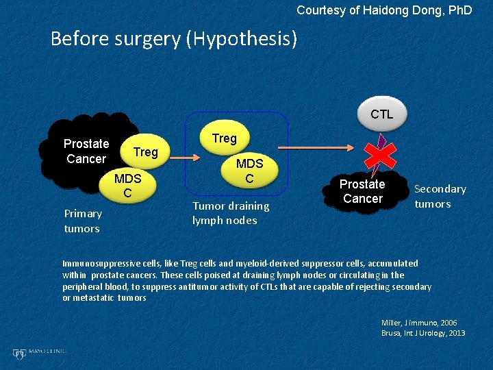 Courtesy of Haidong Dong, Ph. D Before surgery (Hypothesis) CTL Prostate Cancer Treg MDS