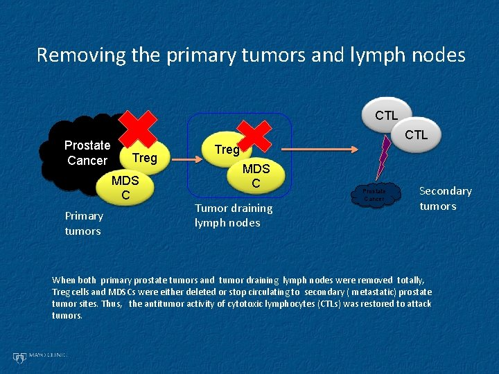 Removing the primary tumors and lymph nodes CTL Prostate Cancer CTL Treg MDS C