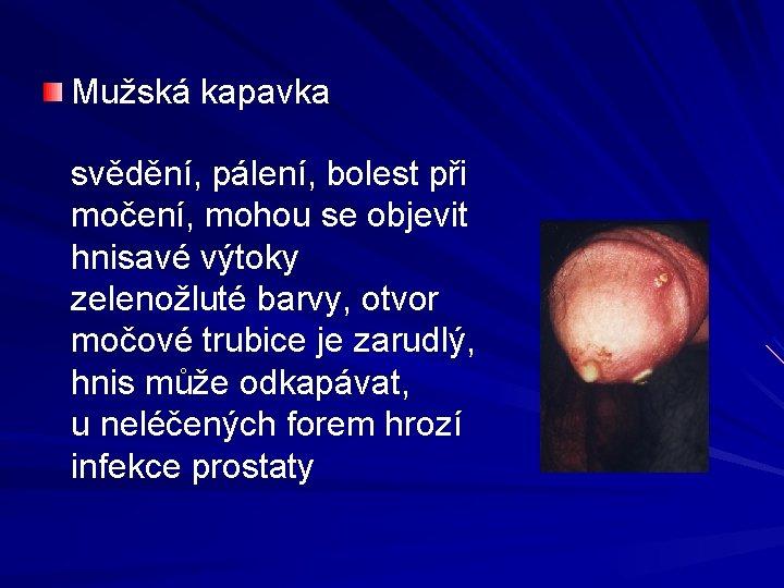 Mužská kapavka svědění, pálení, bolest při močení, mohou se objevit hnisavé výtoky zelenožluté barvy,