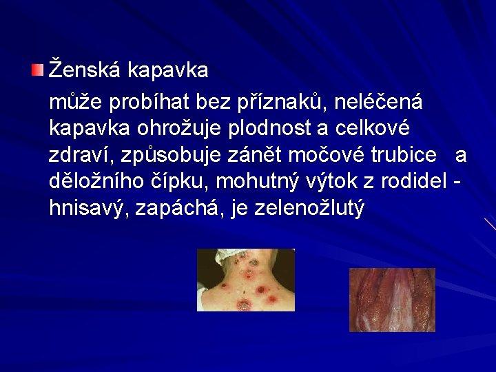 Ženská kapavka může probíhat bez příznaků, neléčená kapavka ohrožuje plodnost a celkové zdraví, způsobuje