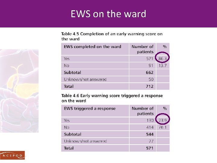 EWS on the ward
