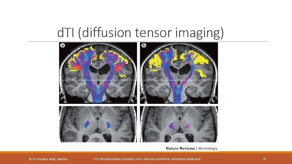 d. TI (diffusion tensor imaging) 25 -27 February 2018, Istanbul 7 TH INTERNATIONAL CEREBRAL