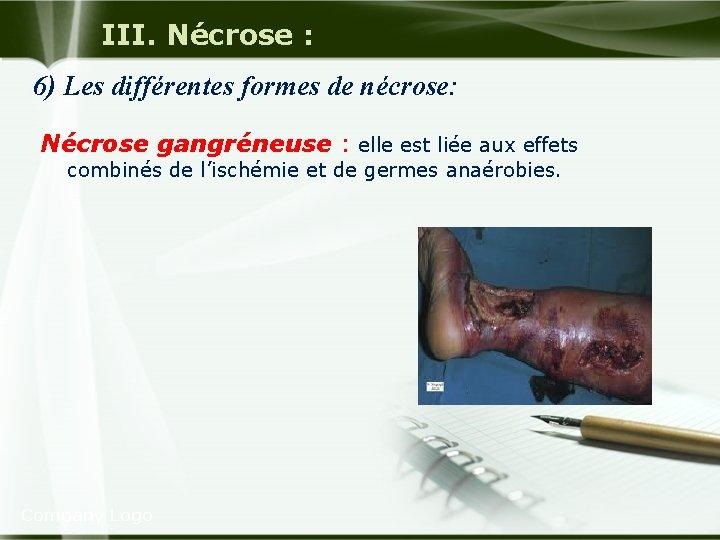 III. Nécrose : 6) Les différentes formes de nécrose: Nécrose gangréneuse : elle est