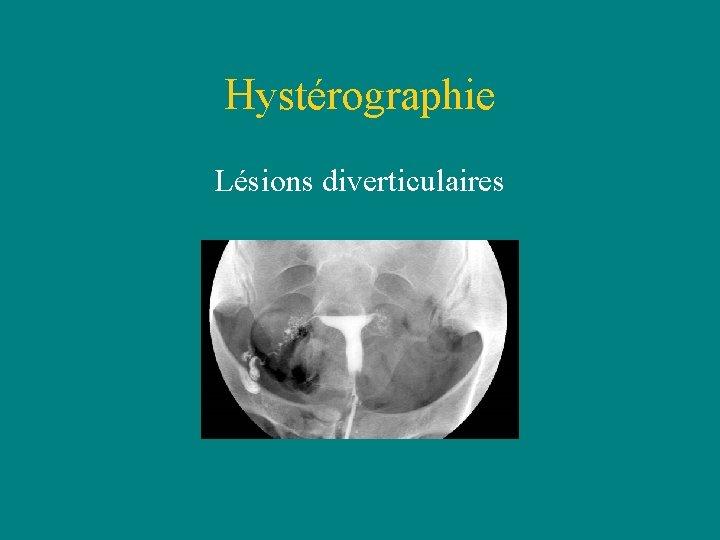 Hystérographie Lésions diverticulaires