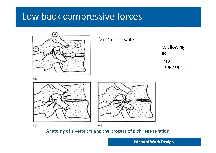Low back compressive forces (a) Normal state (b) Narrowing of the disk space, allowing